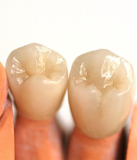 two dental crown examples