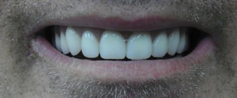 teeth replaced with dental implants