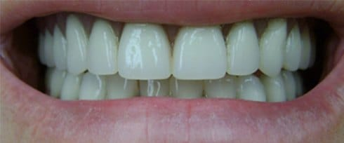 chipped teeth corrected