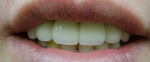 front decayed teeth corrected