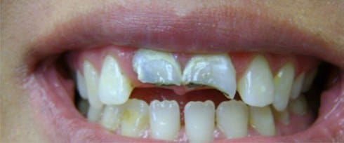 decayed front teeth