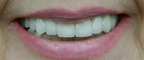 smile with implants after