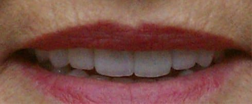 chipped and yellowed teeth now white after correction