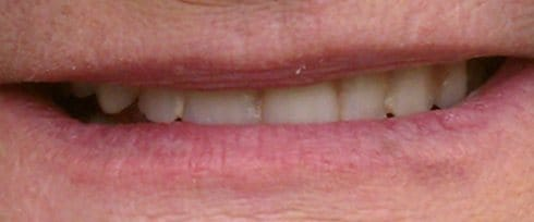 smile with plaque between teeth