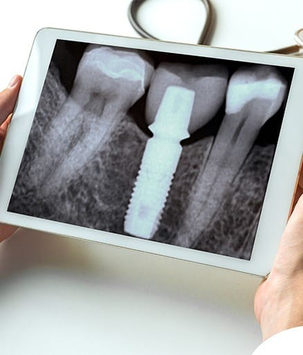 dental implant x-ray on tablet