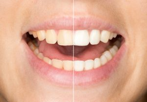 teeth whitening in Sapulpa