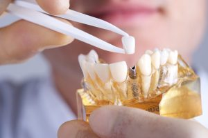 Dental implants in Bixby can improve the quality of a patient's life.