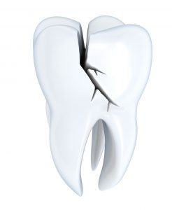 Your dentist in Bixby has treatments and procedures to treat a damaged tooth.