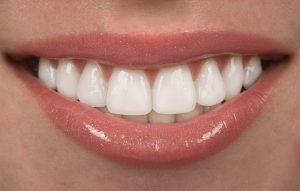 A straight, white, smile.