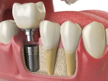 After A Tooth Extraction How Long Until You Can Get A Dental Implant